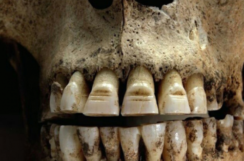 Viking Teeth